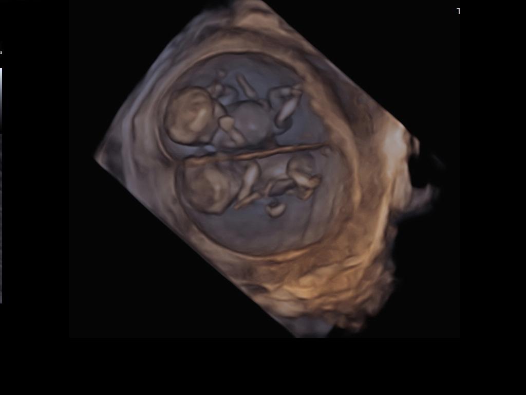 Echographie 1 mois de grossesse jumeaux - Symptome fausse couche 3 semaines ...